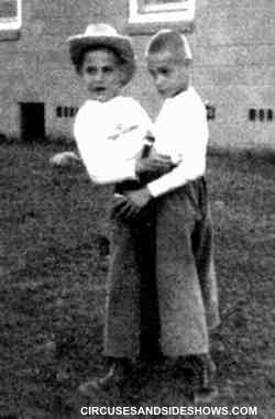 Ronnie and Donnie Galyon conjoined twins